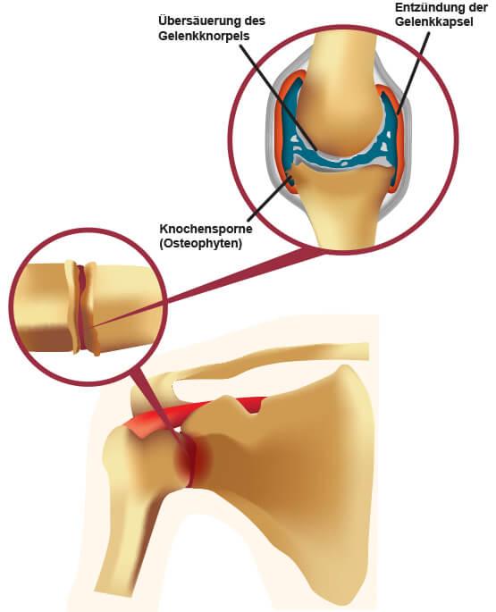 arthrose-übersäurung